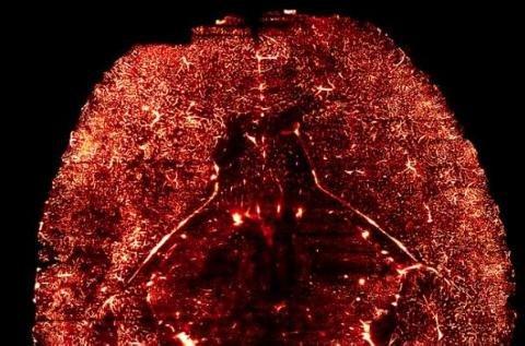Estudio revela que los vasos sanguíneos controlan el crecimiento cerebral