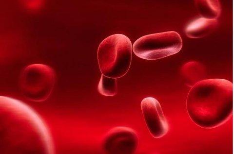 Estudio relaciona pancreatitis con grasas en la sangre