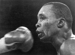 Sugar Ray Leonard bleeds from eye during bout with Roberto Duran