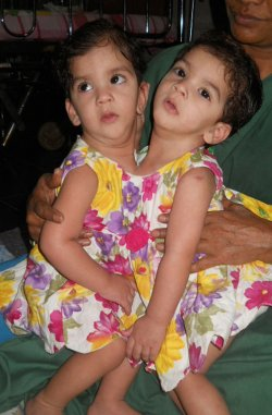 Conjoined twins sepatated in India