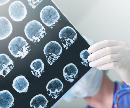 Scientists examine new potential epilepsy treatment