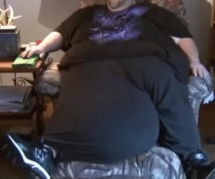 Man raises $28,000 to have his 100-pound scrotum removed