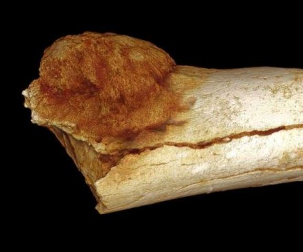 1.7 million-year-old foot bone offers earliest evidence of malignant cancer