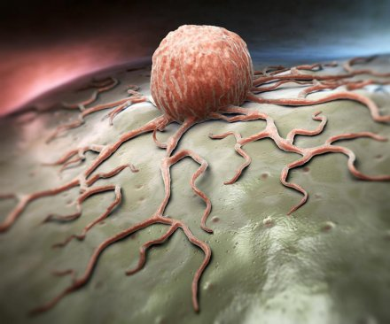 Researchers discover what powers enzyme that helps cancer grow