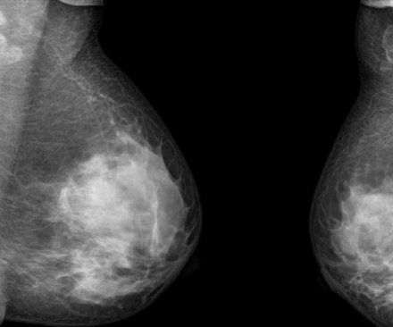 Researchers question genetic tests for breast cancer