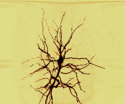 Hope for dementia patients: Study suggests lost memories can be restored