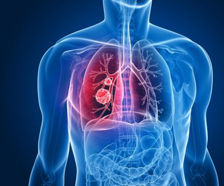 Lung cancer survival increases sharply if caught early, study says