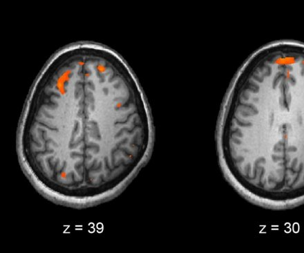 Scientists discover new genetic roots of schizophrenia