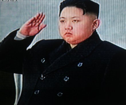 Kim Jong Un's absence tied to ankle surgery