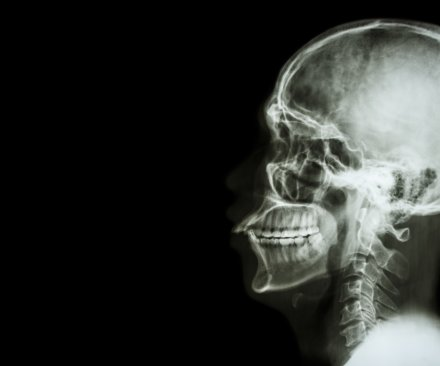 Surgeon: Human head transplant possible in 2 years
