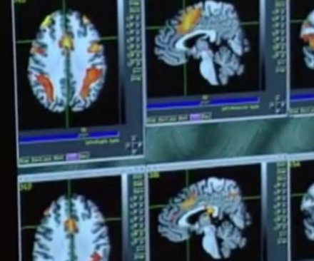 Reduced blood flow seen in brain after clinical recovery from concussion