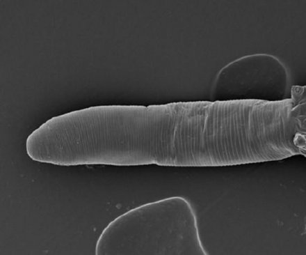 You've got mites on your face, and so does everyone else