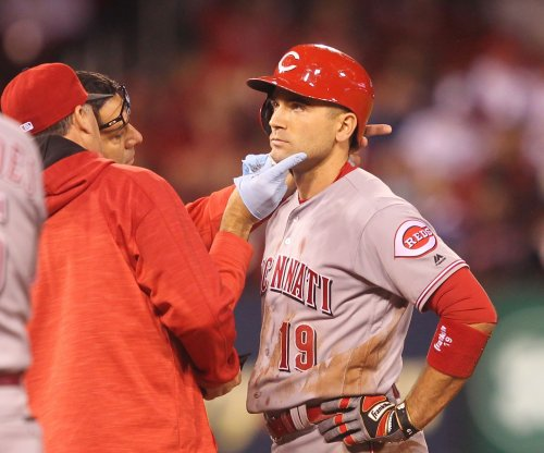 Cincinnati Reds' Joey Votto leaves after being struck by ball