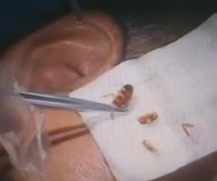 Doctor pulls live cockroach out of patient's ear