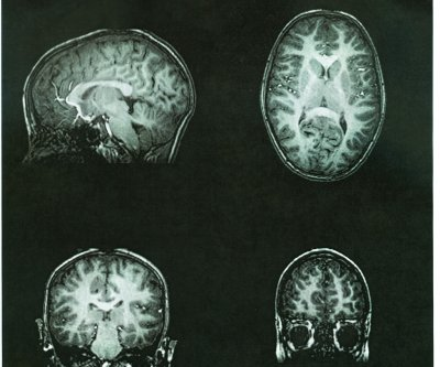 Measuring brain tissue damage can identify cognitive decline