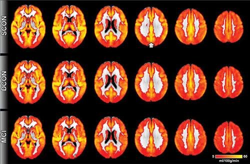 MRI can reveal cognitive decline ahead of symptoms