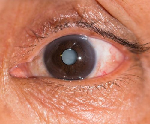 Genetics study may lead to eye drops for cataracts
