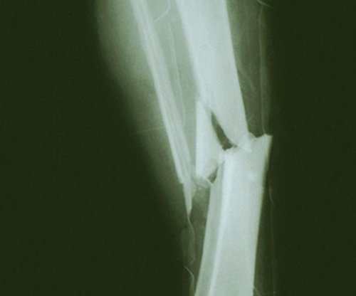 Ultrasound won't help broken bones heal, expert panel says