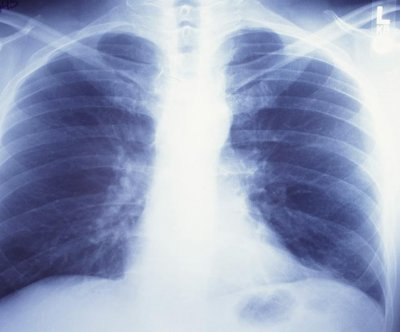 New type of radiation treatment may up survival for older lung cancer patients