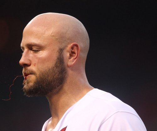 St. Louis Cardinals officially place Matt Holliday on DL with fractured thumb