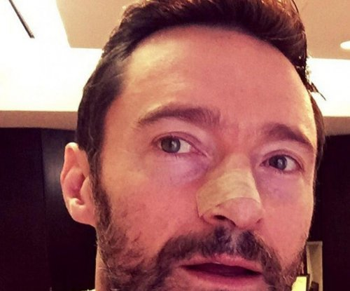 Hugh Jackman shows photo of his latest skin cancer treatment