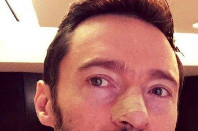 Hugh Jackman shows photo of his latest skin cancer treatment