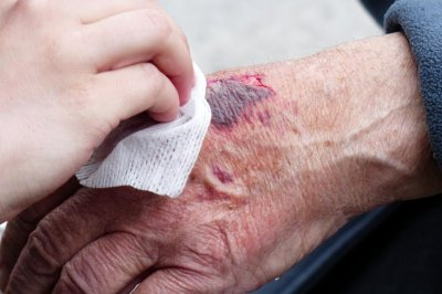 'Smart bandage' could monitor wound healing, researchers say