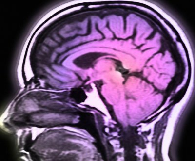 Scans spot brain region that misfires in depressed people