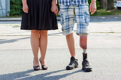 New Medicare rule may make it harder for amputees to get prosthetics