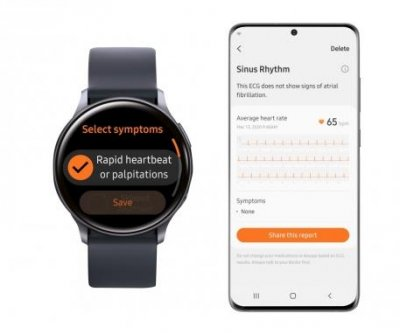 South Korea approves Samsung Galaxy watch as medical device