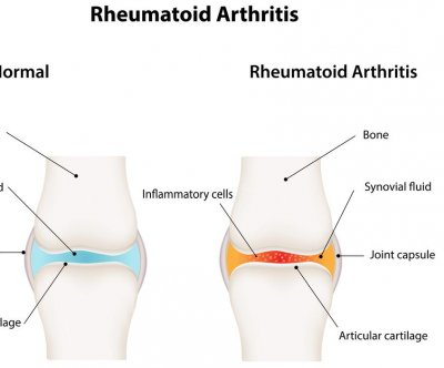 New compound found for treating rheumatoid arthritis