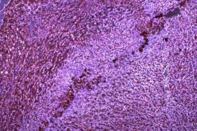 Cancer evades immune system through microRNA