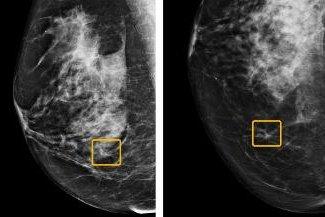Google's AI better than humans at spotting breast tumors