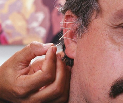 Acupunture may be effective tool against pain in ER