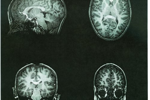 Pediatric brain cancer survivors have more body fat, study says