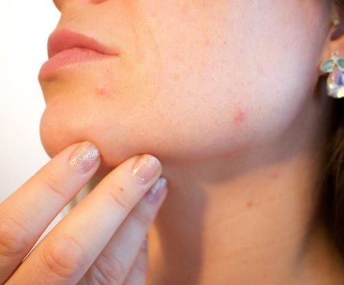 Study: Diuretic as effective as antibiotics to treat women's acne