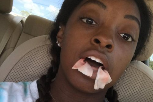 Team USA gymnast Simone Biles posts hilarious video after getting wisdom teeth removed