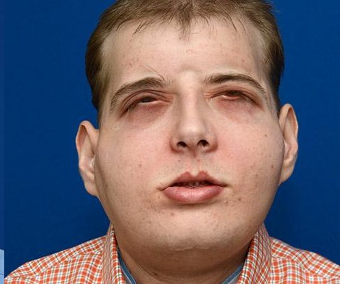 Firefighter receives most extensive face transplant to date
