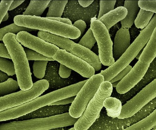 CDC: 'Nightmare bacteria' showing up in U.S.