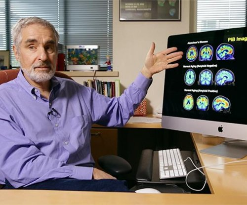 Early diagnosis, staging of Alzheimer's disease seen in PET scans