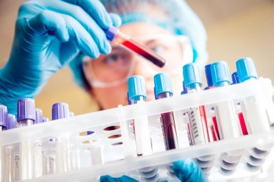 Blood cancer treatment ages immune cells by 30 years, study says