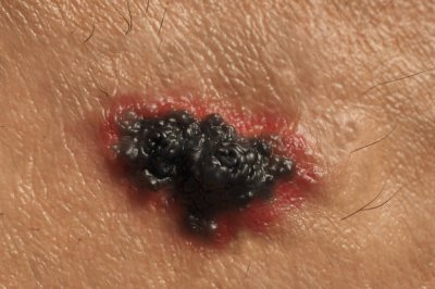 More doctors, white people in region linked to lower skin cancer survival