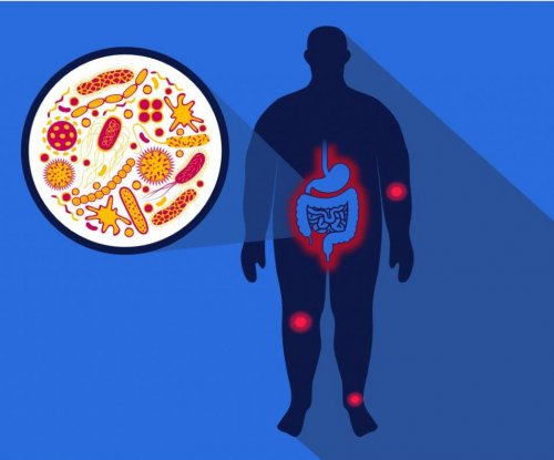 Study explains link between high-fat diet and arthritis