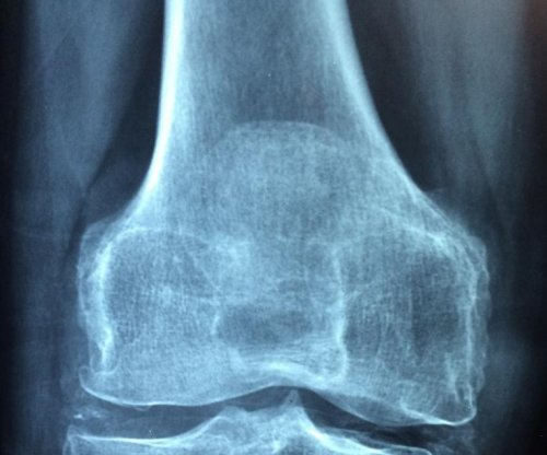 Study: New 3D imaging analysis might improve arthritis care