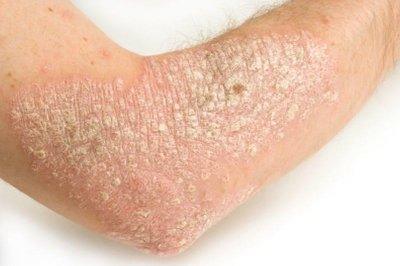 Changes to diet may ease psoriasis symptoms