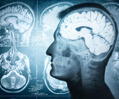 Squeezing blood vessels may lead to Alzheimer's cognitive decline