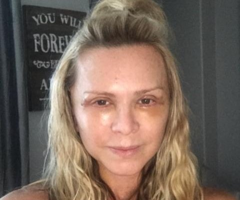 'Real Housewives' star Tamra Judge shares post-facelift photos