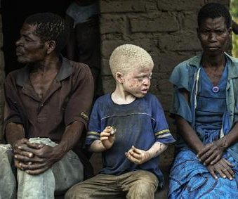 Albinos in Malawi being murdered and bones used for witchcraft