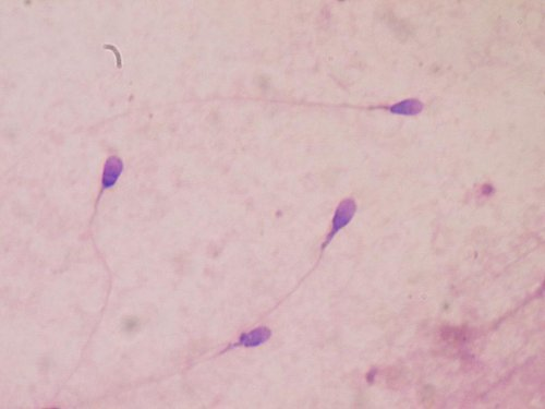Stress deteriorates sperm quality and may hurt fertility
