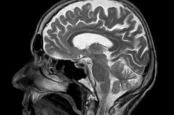 Study: Signs of early Alzheimer's disease may be spotted in brain stem